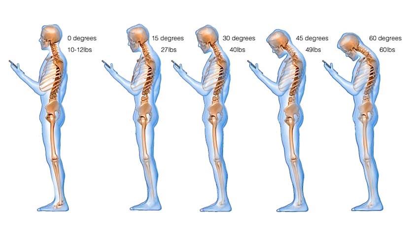 Text neck - grados de inclinación de la cabeza